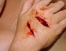 Як уникнути зараження крові при пораненні