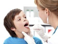 Як лікувати гнійну ангіну у дитини 3 років