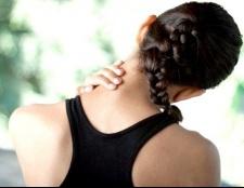Як лікувати шийний радикуліт
