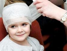 Як лікувати в домашніх умовах струс мозку