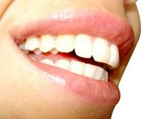 Чому після видалення нерва змінюється колір зуба