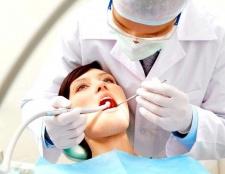 Порада 1: як виглядають зубні нерви
